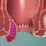 علاج-البواسير-الخارجية